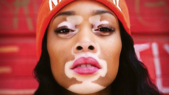 Chantelle-Brown-Young-mannequin-vitiligo